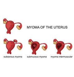 myoma of the uterus vector image