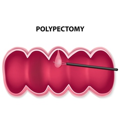 Polypectomy vector