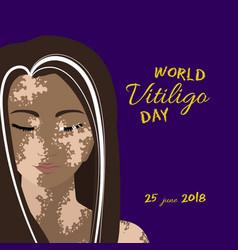 world vitiligo day poster vector image