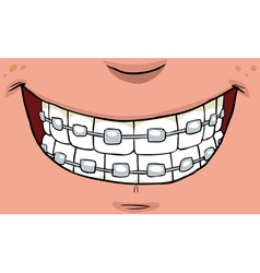 teeth with braces vector image vector image