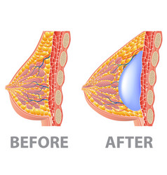 breast implant before and after isolated on white vector image
