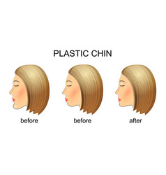 plastic surgery of the chinbefore and after vector image