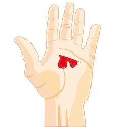 Wound on hand vector image