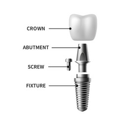 Tooth implant realistic dental implant structure vector