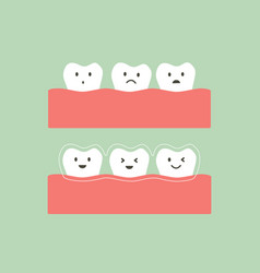 before and after teeth wear invisible braces vector image vector image