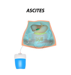 Ascites free fluid in the abdominal cavity vector