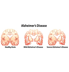 Alzheimers Disease vector