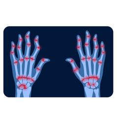 Arthrits x ray vector