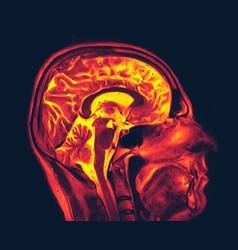 Magnetic resonance imaging brain mri scan vector