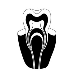 tooth with nerve and root view in black silhouette vector image