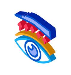 Eyelid surgery treatment isometric icon vector