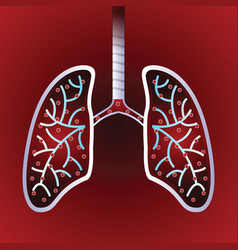 virus and bacteria infected human lungs vector image