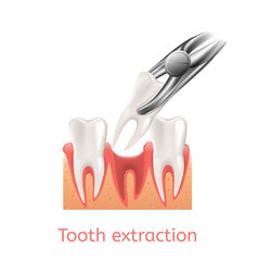 Realistic process tooth extraction vector