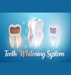 Teeth whitening system 3d realistic tooth vector