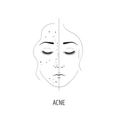 Laser treatment of acne the effect of cosmetology vector
