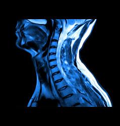 Magnetic resonance imaging cervical spine vector