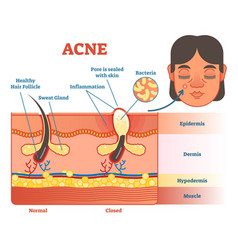 acne diagram vector image