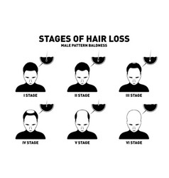 hair loss stages and types of male hair loss male vector image