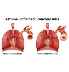 Asthma vector