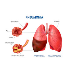 Pneumonia realistic set vector