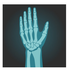 X-ray shot wrist human body bones hand vector