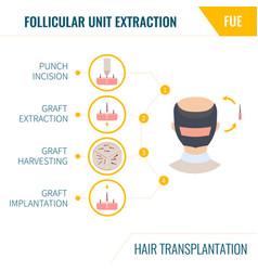 Hair transplantation fue method in men vector