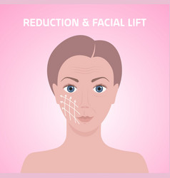 Female face with marks arrow lines on skin vector