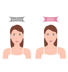 girl with acne before and after vector image