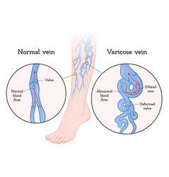 varicose veins poster vector image