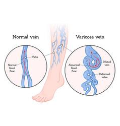 Varicose veins poster vector