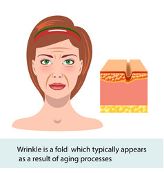 Infographic skin wrinkle change of vector