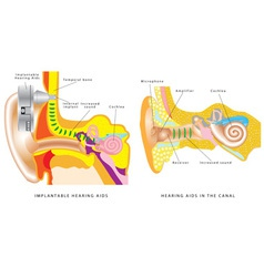 Ear hearing aid vector image
