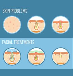 Facial treatment infographic vector