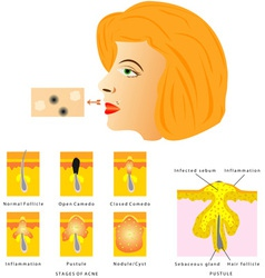Formation of skin acne vector image