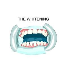 In teeth whitening dentistry vector