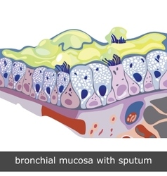 Bronchial Mucosa with Sputum vector image vector image