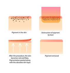 Laser cosmetology procedure for removing tattoo vector