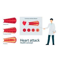 Atherosclerosis vein artery throms flat set vector
