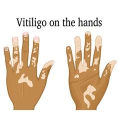 Vitiligo on the hands vector