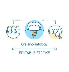 oral implantology concept icon vector image