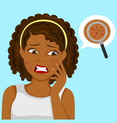 black girl with pimples vector image