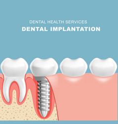 gum section with dental implantat - row of teeth vector image