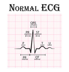 Normal electrocardiogram vector