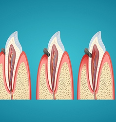 Stages progress caries on human canine vector image