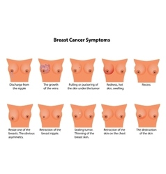 Symptoms of breast cancer Infographics vector image