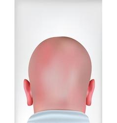 realistic bald head vector image vector image