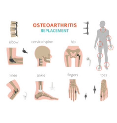 Arthritis osteoarthritis medical infographic vector
