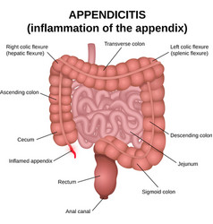 inflammation of the appendix vector image