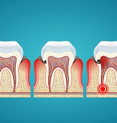 Stages progress caries on human teeth and disease vector