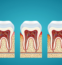 Three human tooth in cutaway with gum disease vector